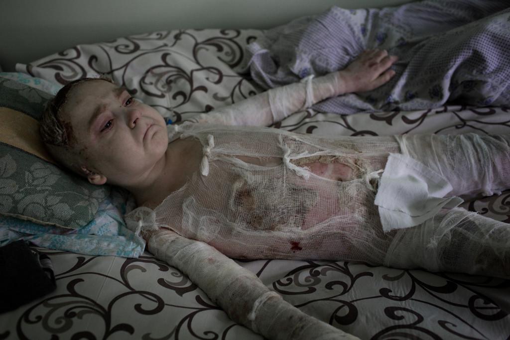 Ukraina  Artem, 7 år, ligger brännskadad på ett sjukhus i Donetsk. Han har tredje gradens brännskador på 60 procent av kroppen efter att en stridsvagn exploderat nära honom och hans kusin. Kusinen Xantia, 9 år, dog på platsen.  Artems pappa Alexander vakar över sin son.  Photo: Niclas Hammarström